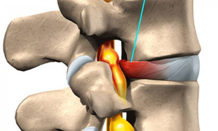 Факты и симптомы спинномозговой грыжи