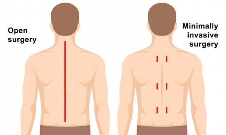 Types of Minimally Invasive Spine Surgery