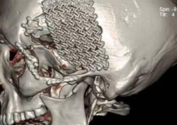 Titanium mesh cranioplasty
