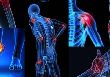 Fibromyalgia: What You Should Know About It