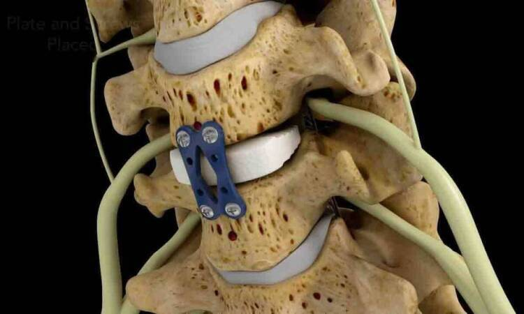 Types of spinal fusion surgeries