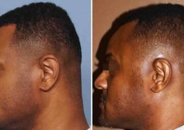 flat head plastic surgery