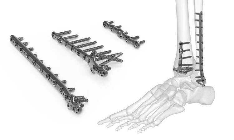 Which Is The Best Orthopedic Distributor In our country?
