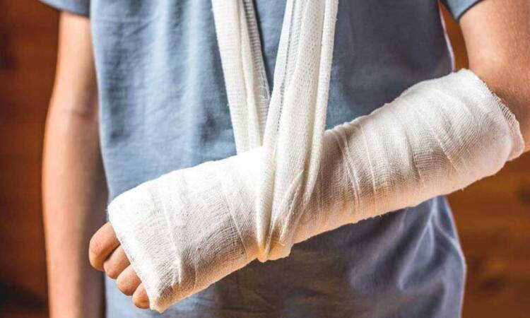 Bone fractures, causes, symptoms and treatment