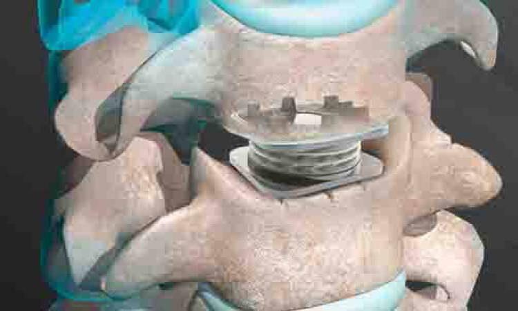 Types of intervertebral disc replacement methods