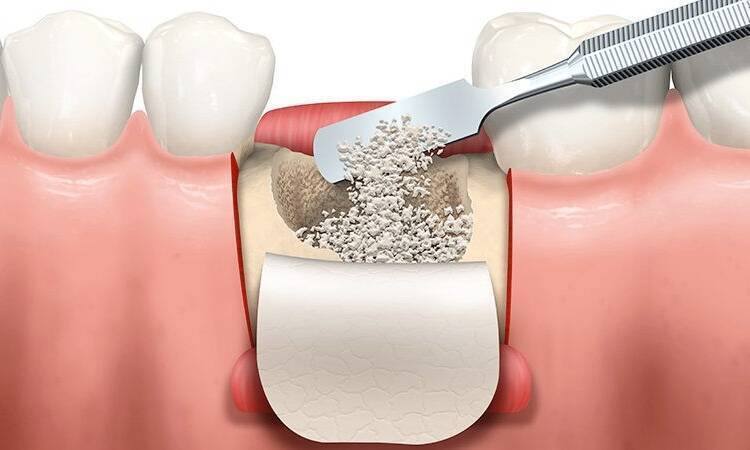 Is Bone Graft Necessary For Implant?