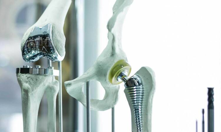 Learn More About The Various Types Of Joint Replacement
