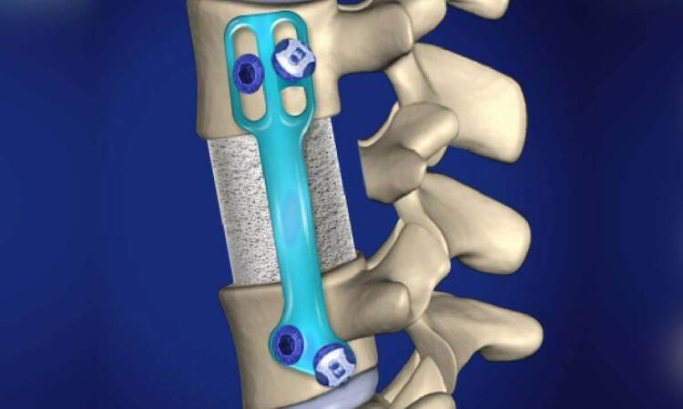 Is it possible to have a spine transplant?