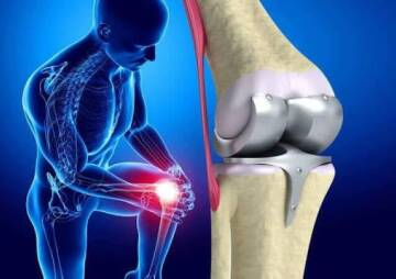 Everything You Need to Know About Knee Replacement Surgery Risks