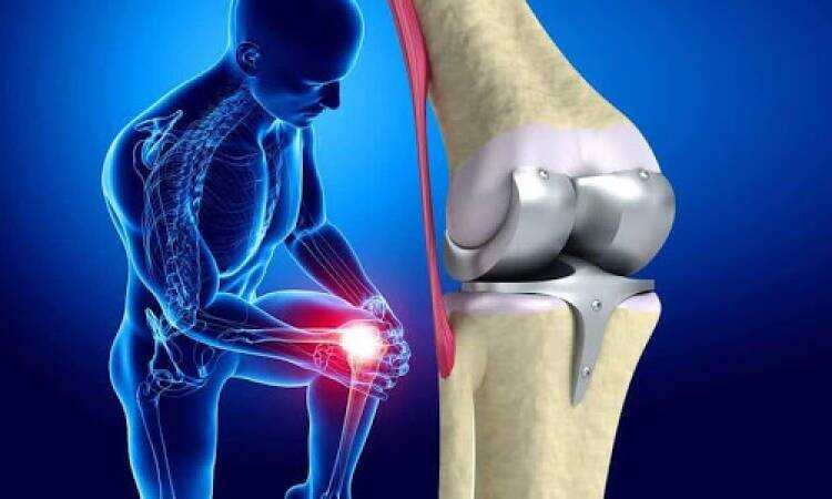 What Do You Know About Knee Replacement Surgery Risks?