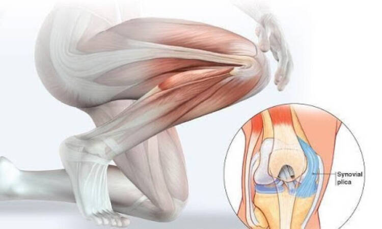 Plica Syndrome Is One of The Main Causes Of Knee Pain