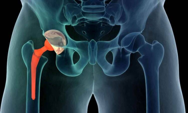 Find Out More About The Various Types Of Hip Replacement