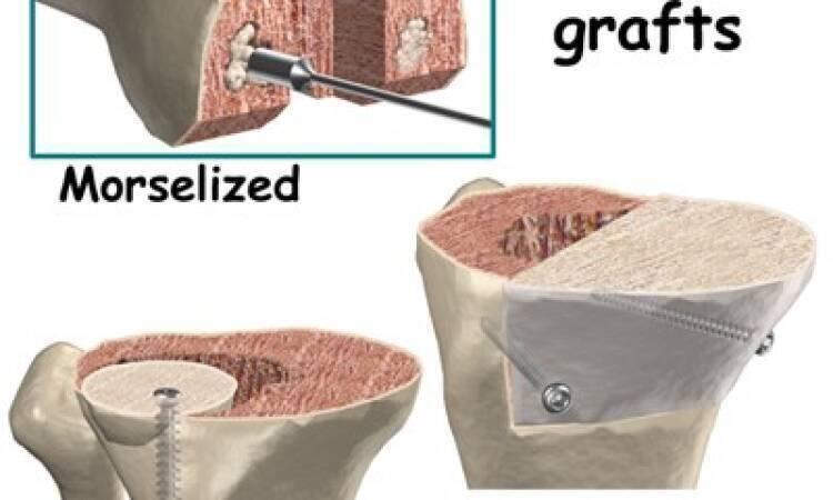 knee bone graft