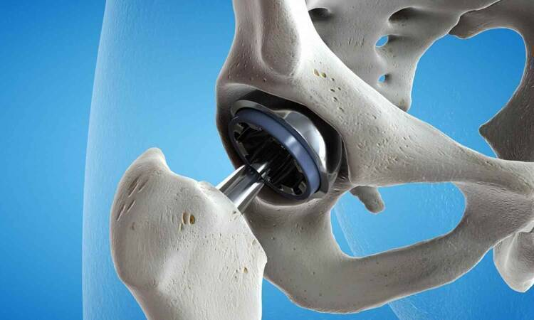 Is Implant Removal Necessary For Orthopedic Patients?