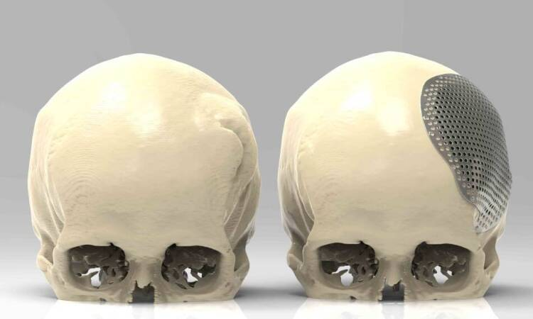 Cranioplasty and its meaning
