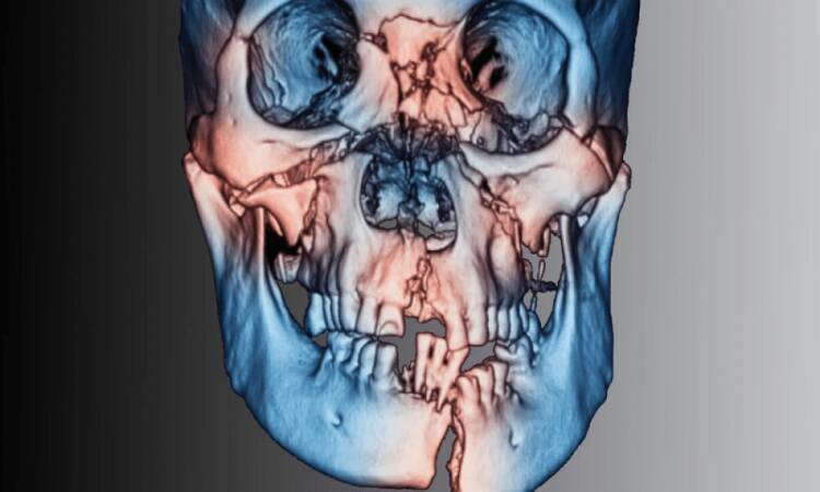 What Are Cranio-Maxillofacial Injuries?