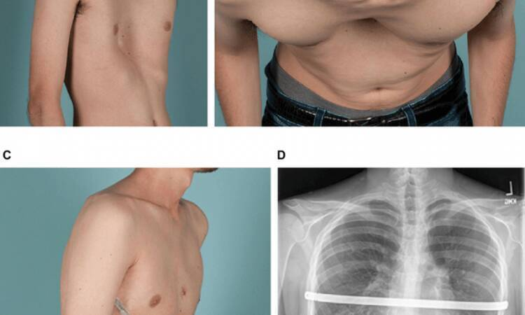 Are you worried about pectus excavatum pain and surgery?