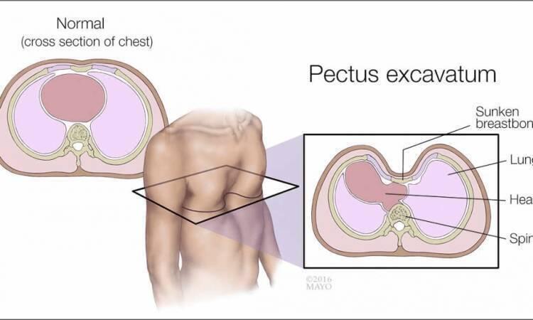 When does pectus excavatum require surgery?
