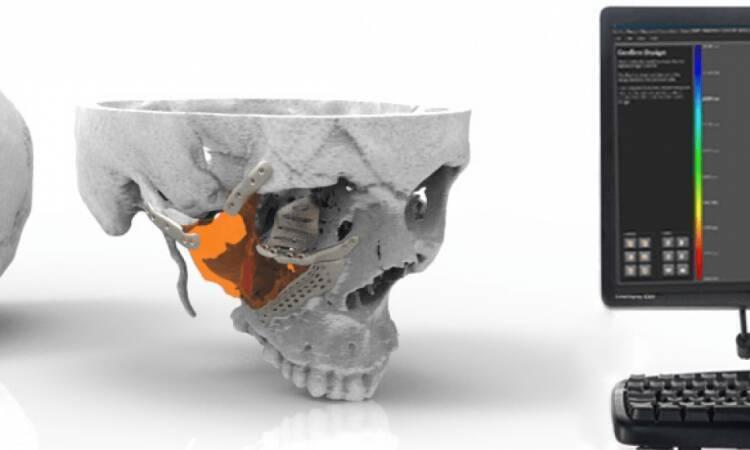 The Application of Custom Skull Implant