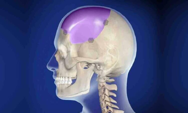 when cranioplasty is necessary?