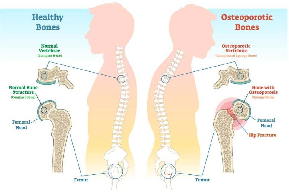 17++ How does osteoporosis affect mobility info