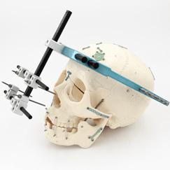 Cranio-maxillofacial implants